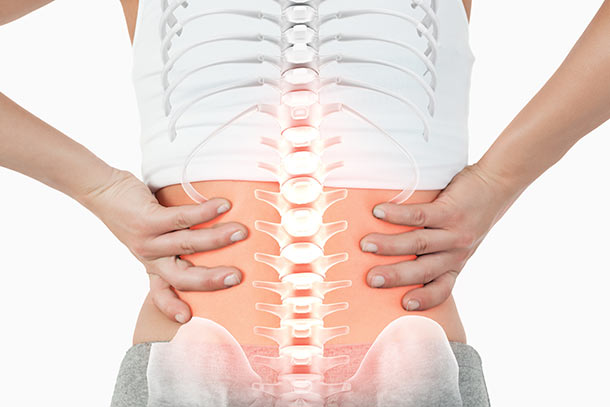 Chiropractor for Back Pain Fort Myers, Back Pain Naples, FL
