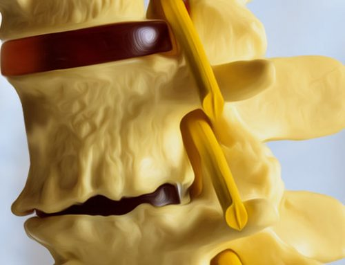Degenerative Disc Disease: Shorten Your Recovery Time