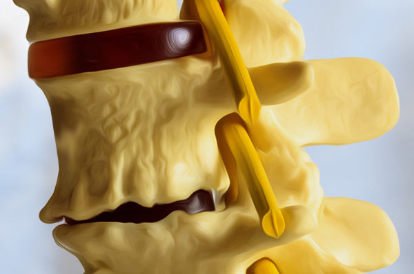 degenerative disc disease treatment in Fort Myers