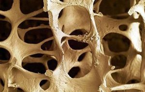 osteoporosis chiropractic care fort myers naples