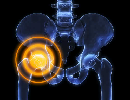 Chronic Muscle Tightness of the Hip? One patients experience.