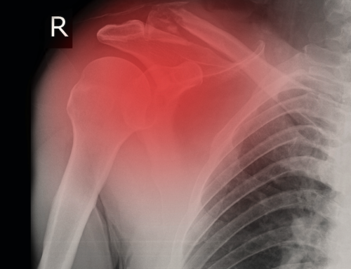 Frozen Shoulder – Heal it Through Chiropractic