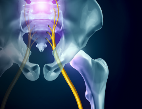 Chiropractic Care Helps Your Body Heal from Sciatica