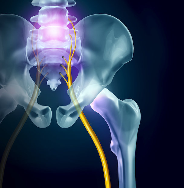 sciatica fort myers