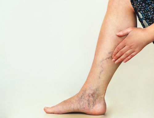 The True Cause of Varicose Veins