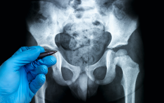 Sacroiliac Joint Pain Fort Myers