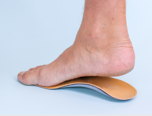 The Impact of Having Flat Feet