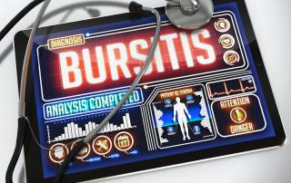 bursitis fort myers, dr kaster