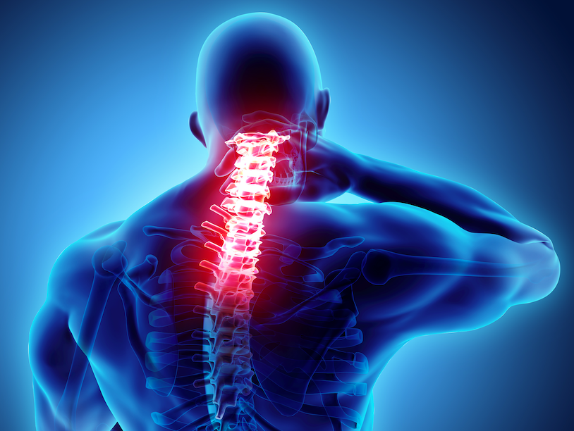 subluxations fort myers chiropractor dr jason kaster