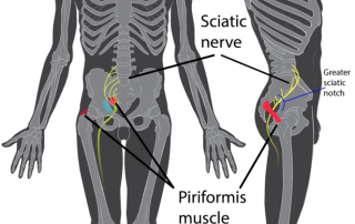Piriformis syndrome chiropractic kaster fort myers