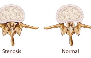 spinal stenosis chiropractic treatment dr kaster fort myers
