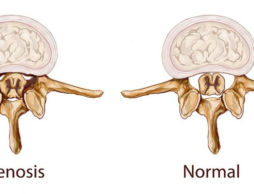 Spinal Stenosis Explained – Chiropractic Can Help Ease the Condition