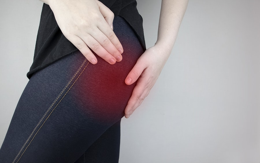 piriformis syndrome fort myers dr kaster chiropractic massage