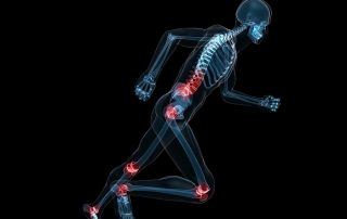 joint pain fort myers dr kaster