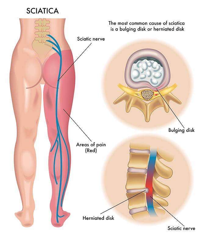chronic sciatica and back pain