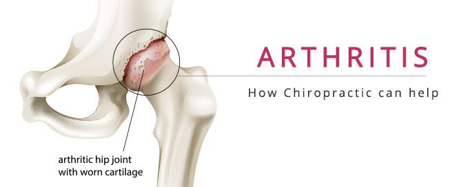 fort myers arthritis treatment