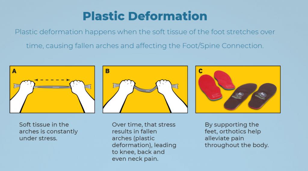 Soft tissue deformation