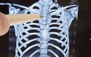 chiropractic for back pain avoid back surgery