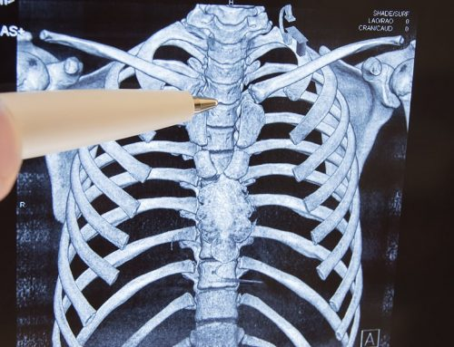 Considering Back Surgery? Try Chiropractic Care First