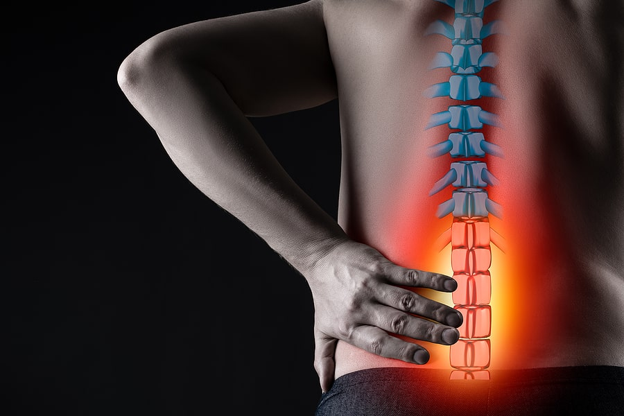 inflammation pain Kaster Chiropractic fort myers nutritional services