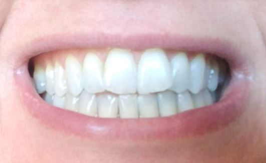 Clean white detoxed deplaqued teeth post charcoal toothpaste brushing