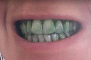 green chlorophyll teeth